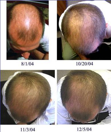 Как быстрей отрастить волосы на голове в домашних условиях